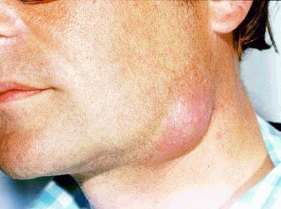 воспаление лимфоузла уплотнение под челюстью шарик болит при нажатии лечение