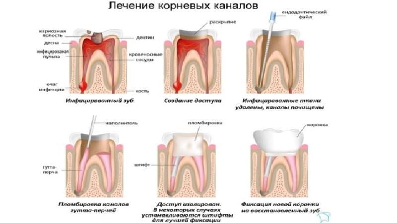 чистка каналов зуба больно или нет
