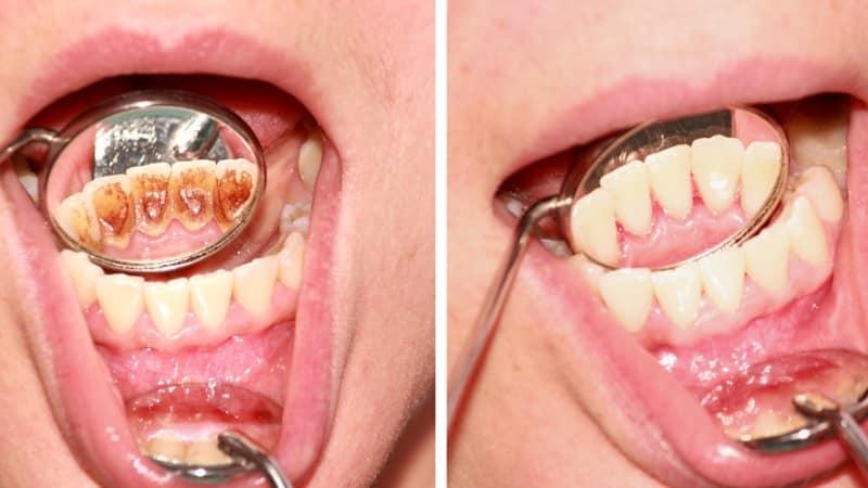 удаление камней с зубов