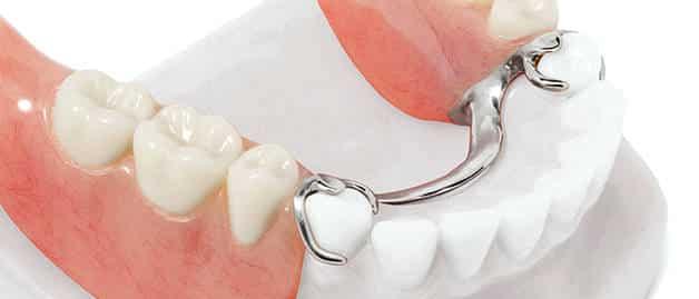 Бюгельный протез в стоматологии: цены, отзывы, фото Видео