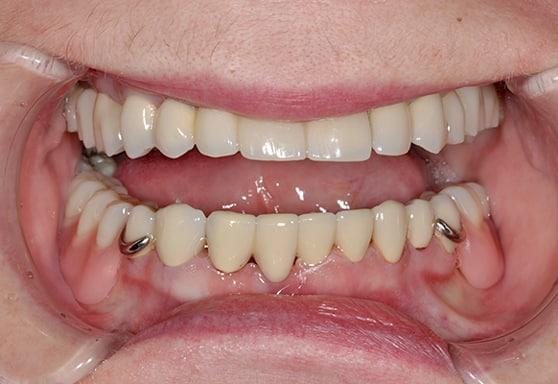 съемные бюгельные зубные протезы фото