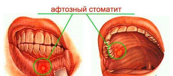 Лечение парапроктита народными средствами без операции