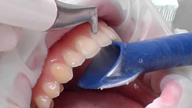 можно ли беременным делать чистку зубов
