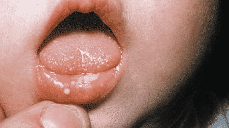 герпетический стоматит у детей фото лечение