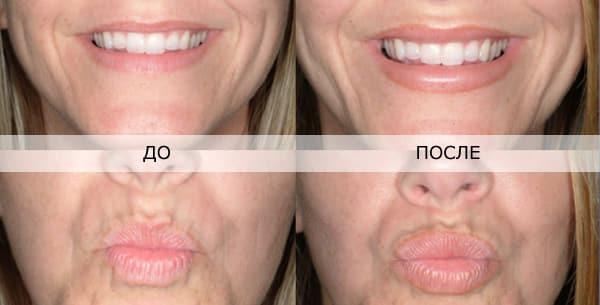 гиалуроновая кислота в губы фото до и после