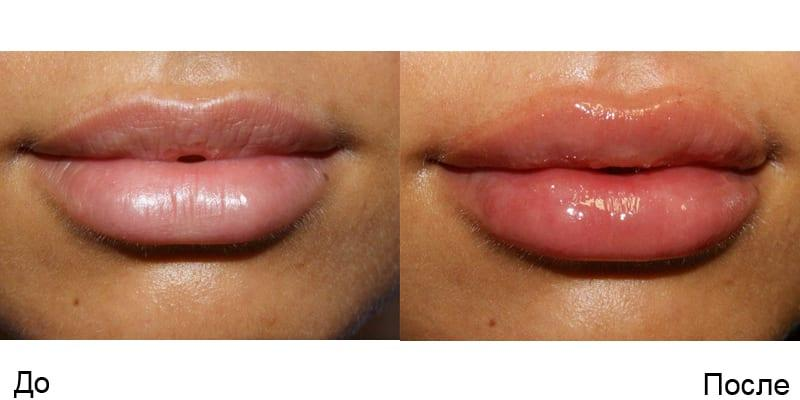 увеличение верхней губы до и после гиалуроновой кислоты фото отек губ
