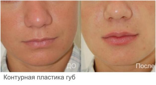 увеличенные губы фото до и после