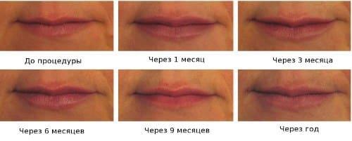 больно ли увеличивать губы гиалуроновой кислотой
