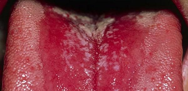 как лечить кандидозный глоссит воспаление языка причины фото лечение симптомы