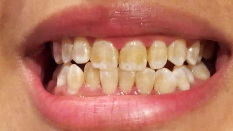 к чему снятся новые вставные зубы