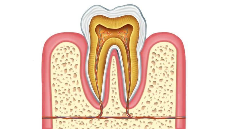 как чем можно убить нерв в зуб