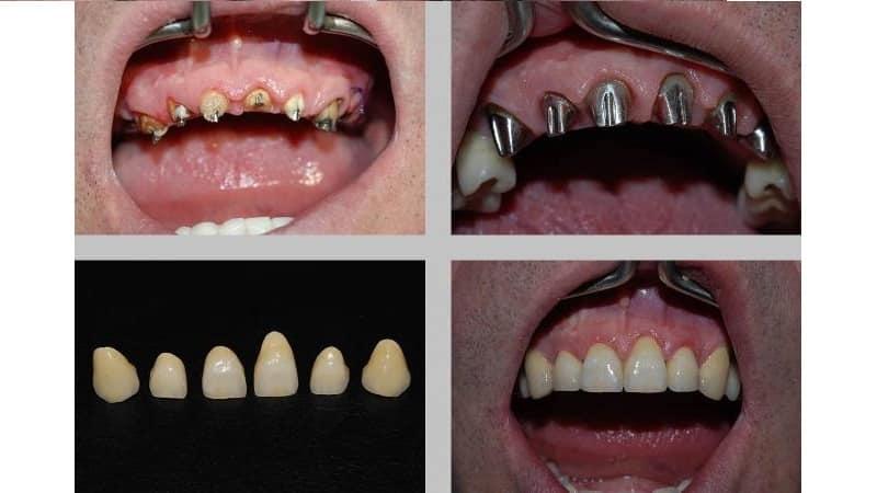 зуб корень фото