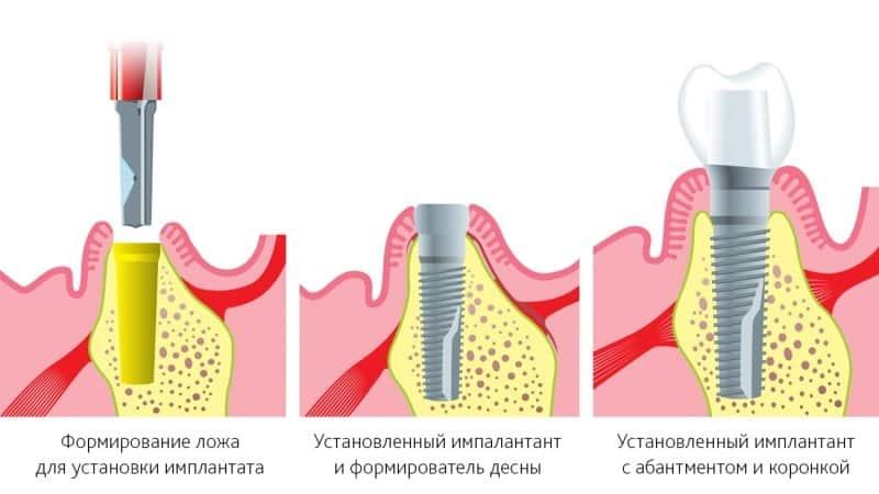 штифты для зубов фото