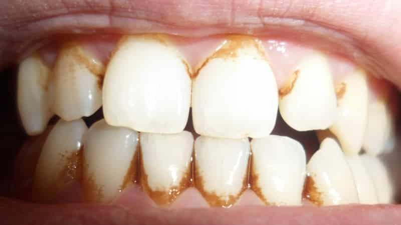 как убрать налет с зубов