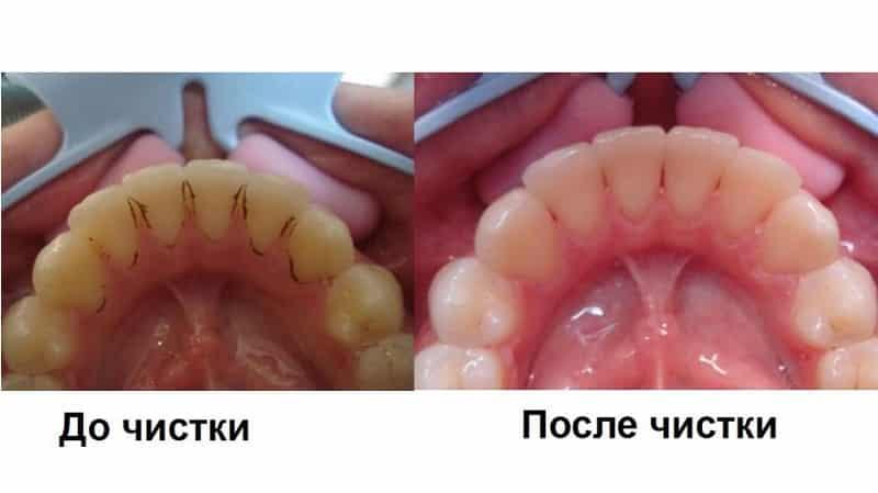 как выглядят камни на зубах фото до и после