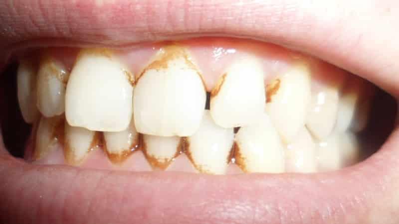 зубные камни фото