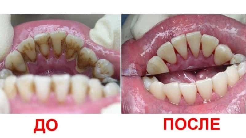 удаление зубного камня до и после фото