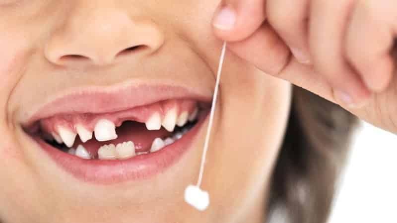 меняются ли коренные зубы у детей порядок прорезывания