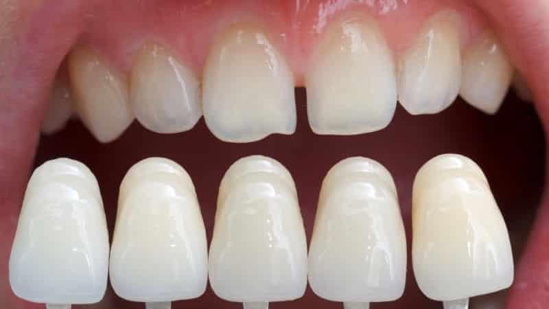 восстановление эмали зубов народными средствами в домашних условиях зубной