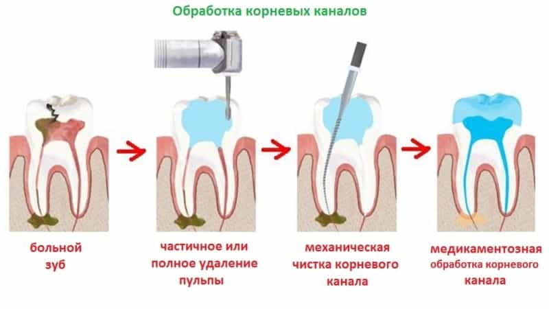 после пломбировки каналов болит зуб при надкусывании