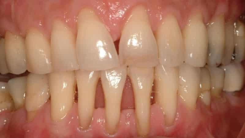 оголение шейки зуба лечение народными средствами фото