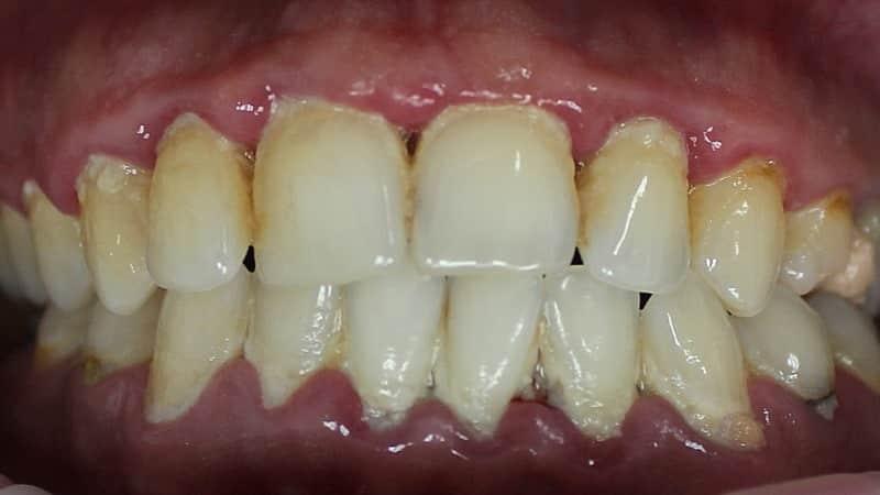оголяются корни зубов что делать причины