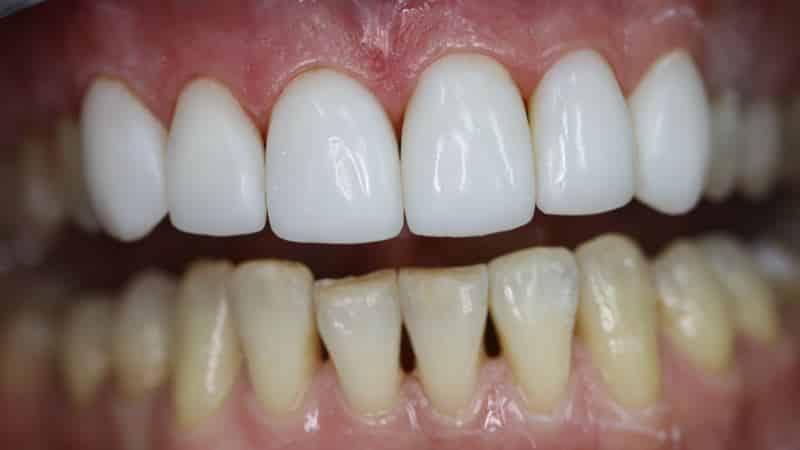 Оголяются корни зубов что делать и как лечить