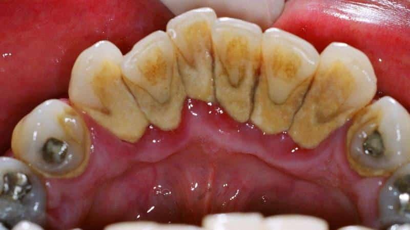 От чего появляется зубной камень: причины и как его удалить