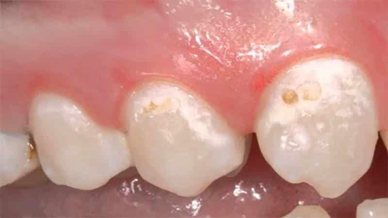 Зубной камень это