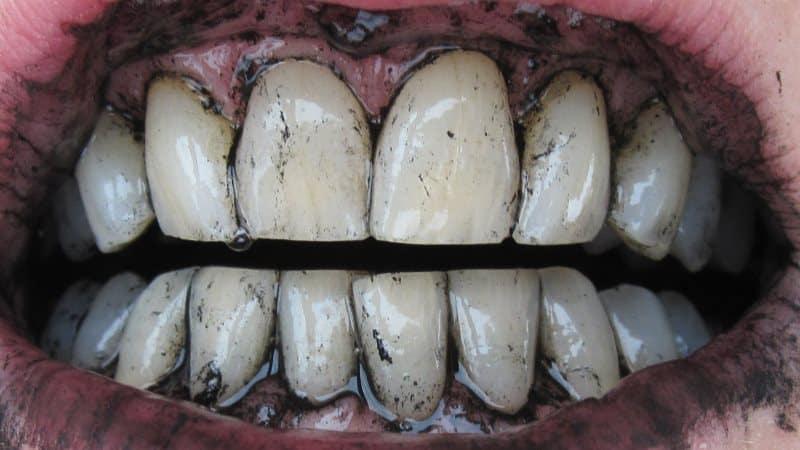 как чистить отбелить зубы активированным углем
