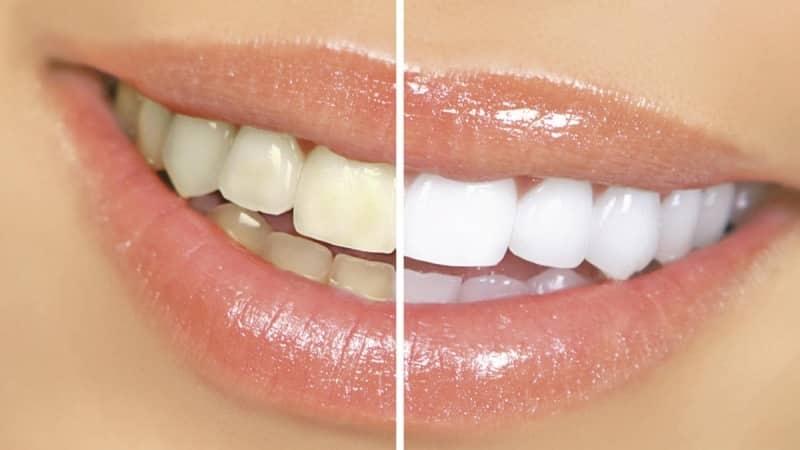 можно ли как отбелить зубы перекисью водорода и содой в домашних условиях