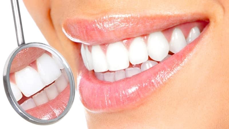 отбеливание зубов в домашних условиях перекисью водорода