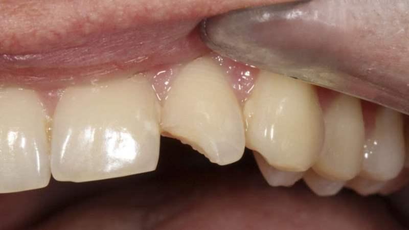 причины, почему крошатся зубы у взрослого человека взрослых