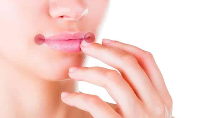 почему появляются трещины в уголках рта причины лечение