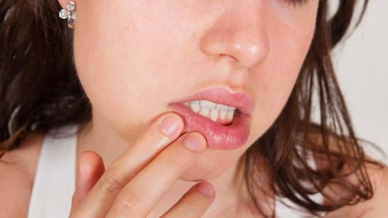 в уголке рта трещина ранка лечение