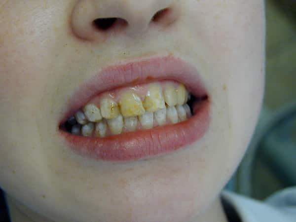 почему чернеют зубы у годовалого ребенка