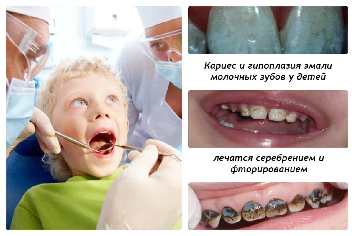 чернеют зубы у ребенка 1 год темнеют