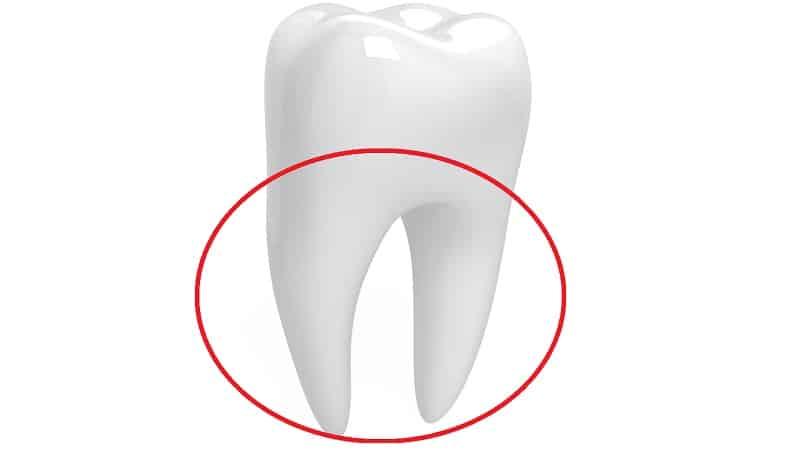 как вставляют зубы если нет корня