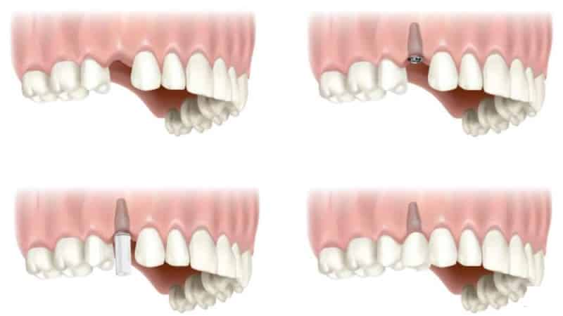 как вставить зубы если нет корня