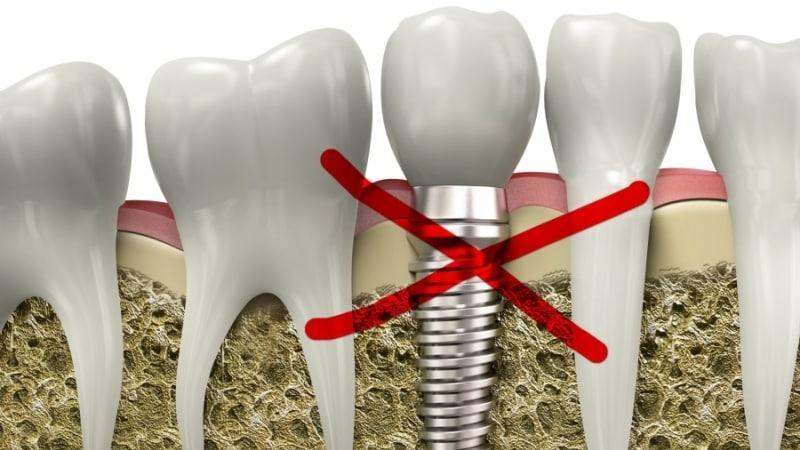 импланты зубов противопоказания