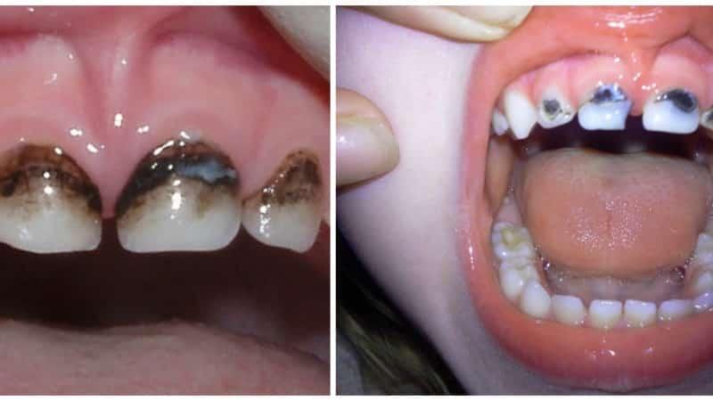 посеребрение зубов детям