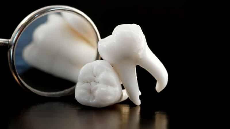 сколько каналов в зубах