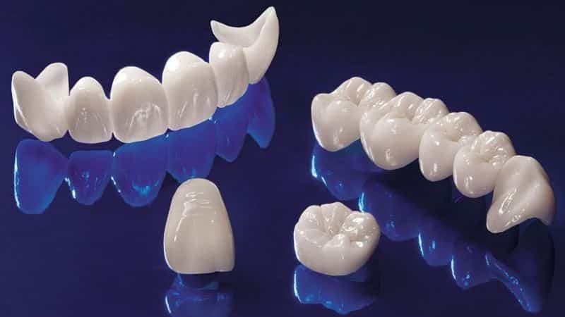 циркониевые коронки зубы фото