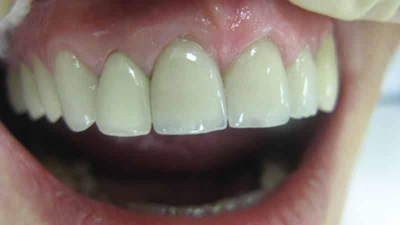 зубы из циркония фото до и после