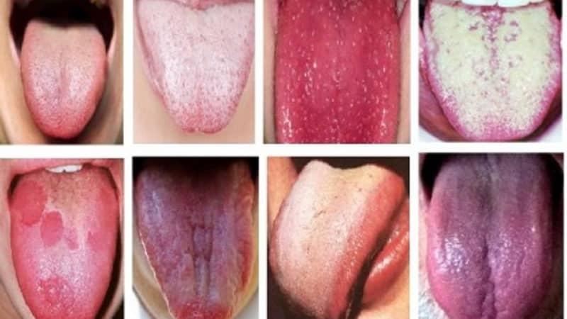 определение болезни по языку человека фото