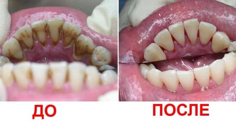 очистка зубов ультразвуком