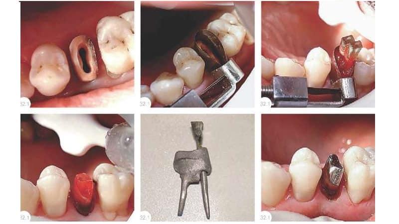 культевая зубная вкладка под коронку что это