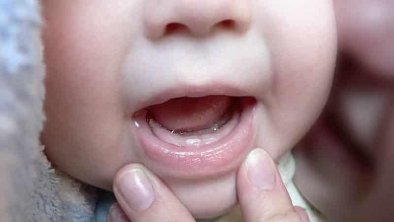 белая точка на десне у ребенка грудничка фото