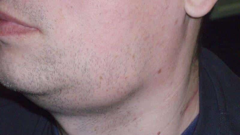воспалены болят подчелюстные лимфоузлы увеличены причины фото