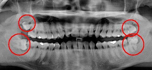 воспаление десны около зуба мудрости лечение
